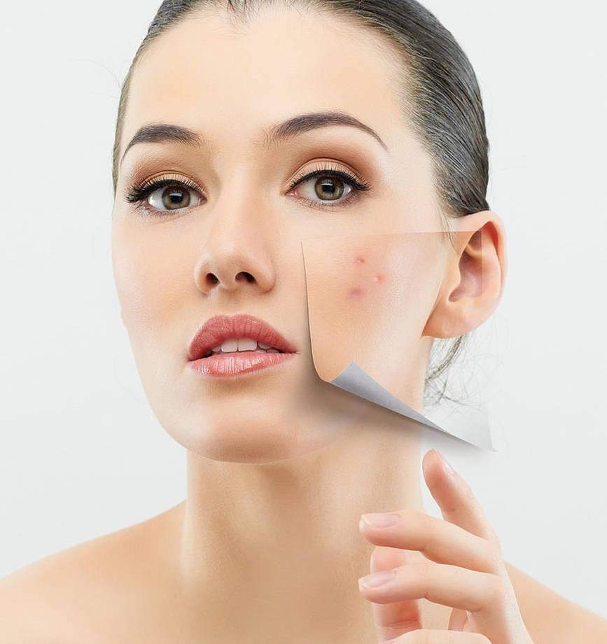 Почистване на лице на супер цени 3
